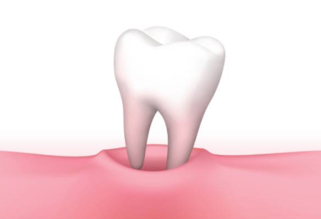 Rêver de dents: signification et analyse